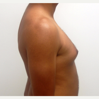 25-34 year old man treated with Male Breast Reduction before 3383170