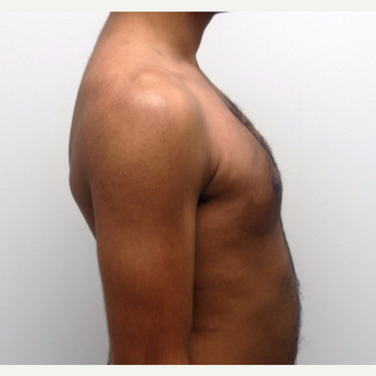 25-34 year old man treated with Male Breast Reduction after 3383170