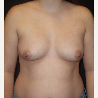 18-24 year old woman treated with Breast Implants before 3458273