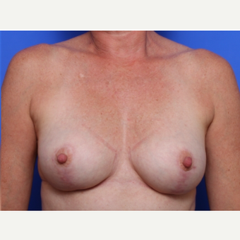 45-54 year old woman treated with Breast Lift after 2267997