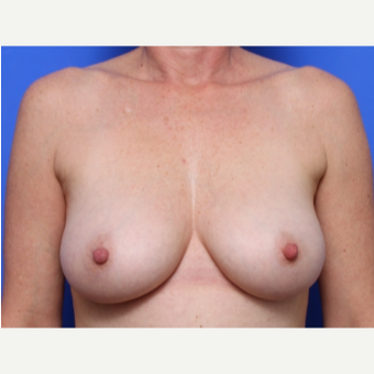 45-54 year old woman treated with Breast Lift before 2267997