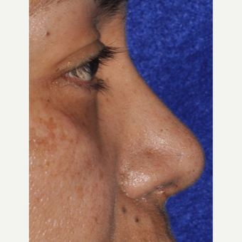 45-54 year old woman treated with Rhinoplasty after 3844156