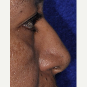 45-54 year old woman treated with Rhinoplasty before 3844156