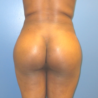 25-34 year old woman treated with Brazilian Butt Lift after 3743182