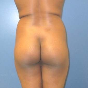25-34 year old woman treated with Brazilian Butt Lift before 3743182