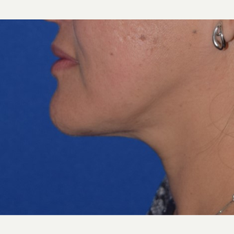 35-44 year old woman treated with Chin Liposuction after 3641477