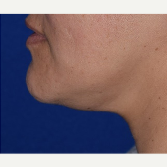 35-44 year old woman treated with Chin Liposuction before 3641477