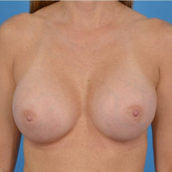 45-54 year old woman treated with Breast Augmentation after 1773066