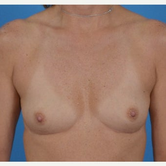 45-54 year old woman treated with Breast Augmentation before 1773066