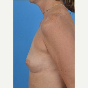 45-54 year old woman treated with Breast Augmentation 1773066