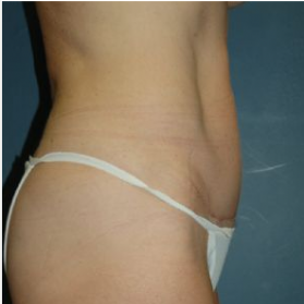 Tummy Tuck after 3720557