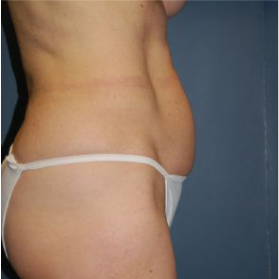 Tummy Tuck before 3720557