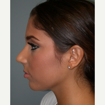 18-24 year old woman treated with Rhinoplasty after 3685188
