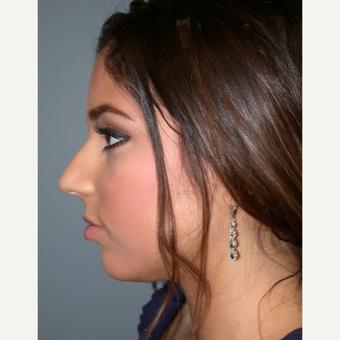 18-24 year old woman treated with Rhinoplasty before 3685188