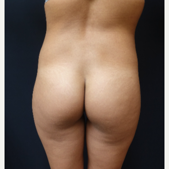 25-34 year old woman treated with 548cc Round Silicone Butt Implants for her Augmentation before 3043071