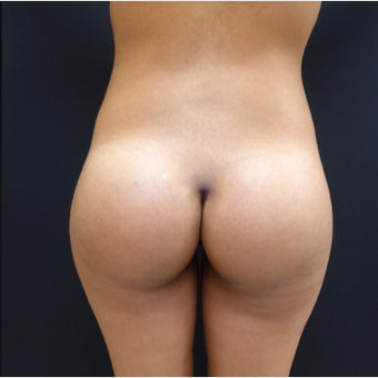 25-34 year old woman treated with 548cc Round Silicone Butt Implants for her Augmentation after 3043071