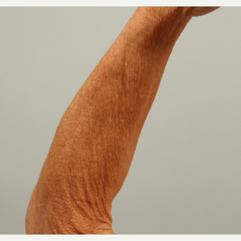 62 year old woman treated left arm with microneedling and DefenAge  post-treatment serum before 3419599