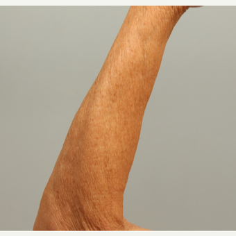 62 year old woman treated left arm with microneedling and DefenAge  post-treatment serum after 3419599