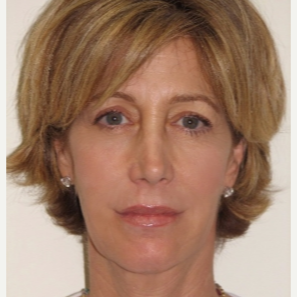 45-54 year old woman treated with Injectable Fillers and Ultherapy after 3137207
