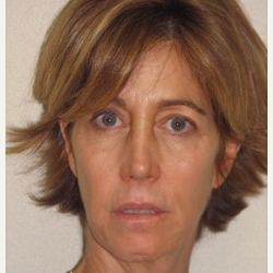 45-54 year old woman treated with Injectable Fillers and Ultherapy before 3137207