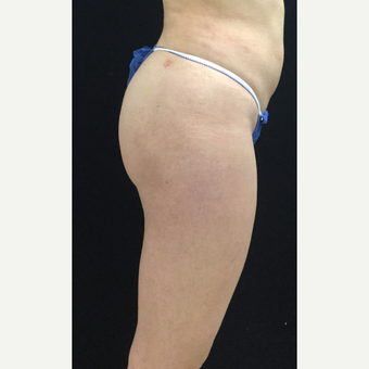 25-34 year old woman treated with Brazilian Butt Lift after 3064652