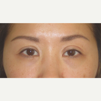 35-44 year old woman treated with Eyelid Surgery before 3550369