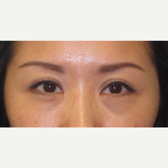 35-44 year old woman treated with Eyelid Surgery after 3550369