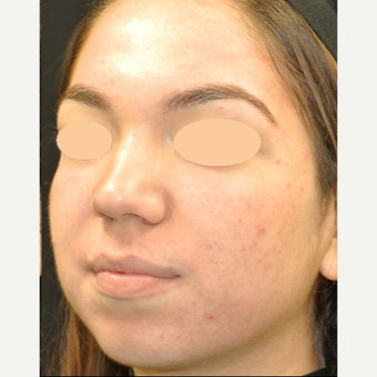 17 or under year old woman treated with Acne Treatment after 3398311