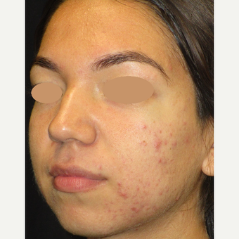 17 or under year old woman treated with Acne Treatment before 3398311