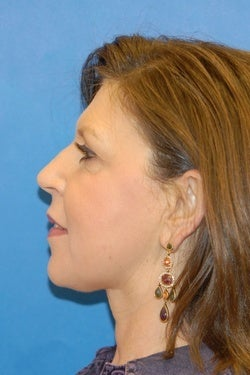 K-Lift  the Non Surgical Neck Lift