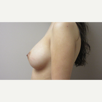 Breast Augmentation after 3630644