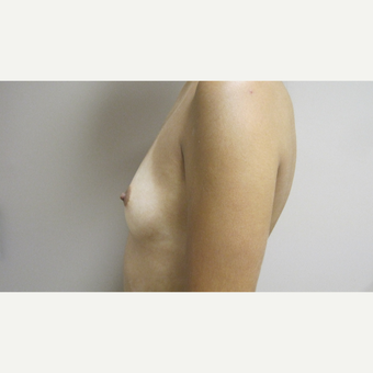 Breast Augmentation before 3630644