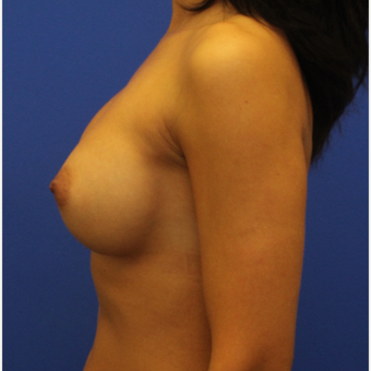 38- year old woman treated with Breast Implant Revision before 3169554