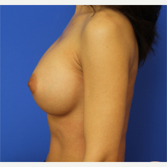 38- year old woman treated with Breast Implant Revision after 3169554