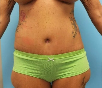 45-54 year old woman treated with Slim Lipo after 1804863