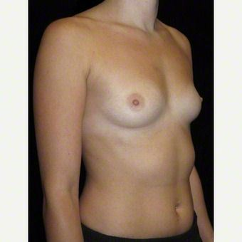 24 year old woman treated with Breast Augmentation before 3103649