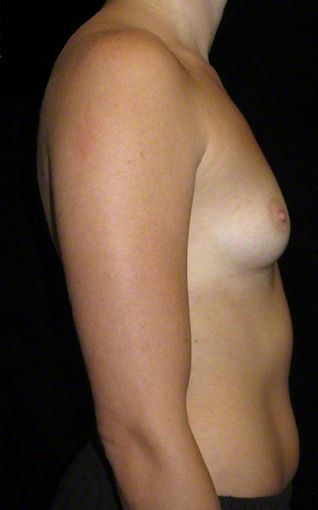 24 year old woman treated with Breast Augmentation 3103649