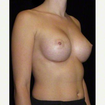 24 year old woman treated with Breast Augmentation after 3103649