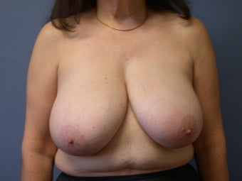 Breast Reduction on 64-year-old before 951971