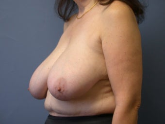 Breast Reduction on 64-year-old 951971