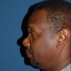 55-64 year old man treated with African American Rhinoplasty after 3294324