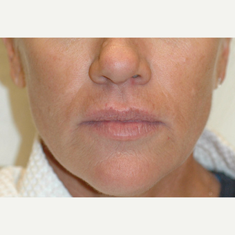 Sculptra Injections Before and After after 3103509
