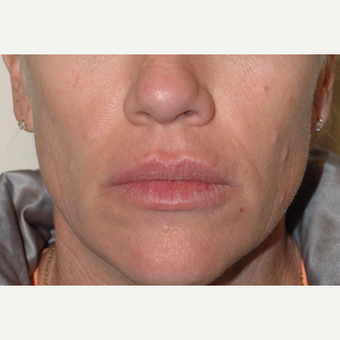 Sculptra Injections Before and After before 3103509