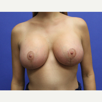 32 year old woman treated with Breast Lift with Implants after 3696971