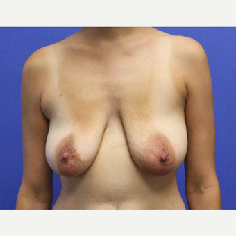 32 year old woman treated with Breast Lift with Implants before 3696971