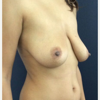 35-44 year old woman treated with Breast Lift before 3841970