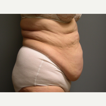 Liposuction - 66 year old female, 2 months post-op before 2696544
