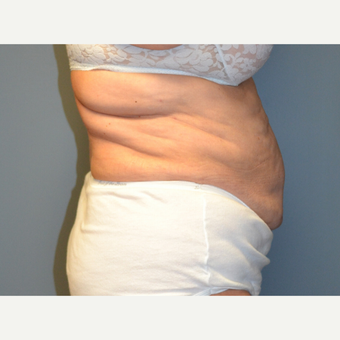 Liposuction - 66 year old female, 2 months post-op after 2696544