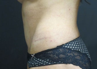 25-34 year old woman treated with Tummy Tuck after 2959187