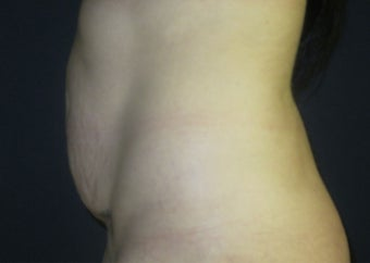 25-34 year old woman treated with Tummy Tuck before 2959187